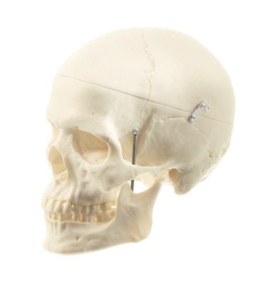 SOMSO særdeles naturtro kvindelig kraniemodel - kan adskilles i 3 dele