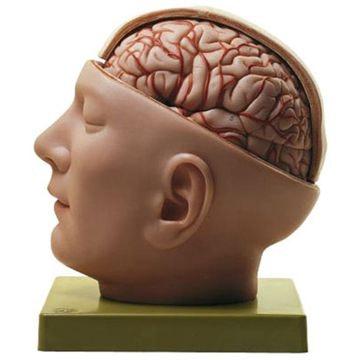SOMSO Hoved med åbent kranie