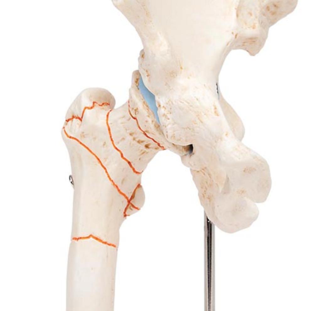 Formindsket hoftemodel med fokus på hoftefrakturer og hofteartrose