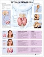 Lamineret plakat om sygdomme i skjoldbruskirtlen på engelsk