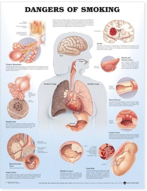Skader ved rygning lamineret plakat engelsk (Dangers Of Smoking)