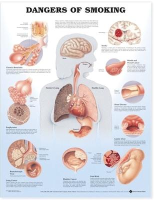 Lamineret plakat om skader ved rygning på engelsk