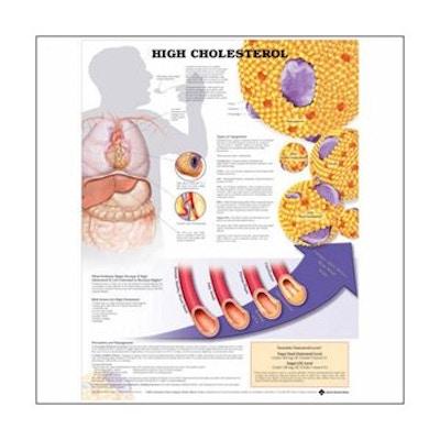 Lamineret plakat om FORHØJET kolesterol på engelsk (inkl. ringhuller)
