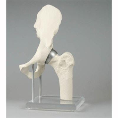 Höftmodell som visar en ytersättningsprotes (Birmingham Hip)