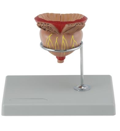 Model af prostata (blærehalskirtlen) i 2 x forstørrelse