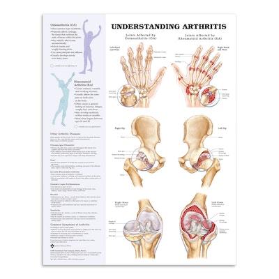 Plakater om lidelser i bevægeapparatet