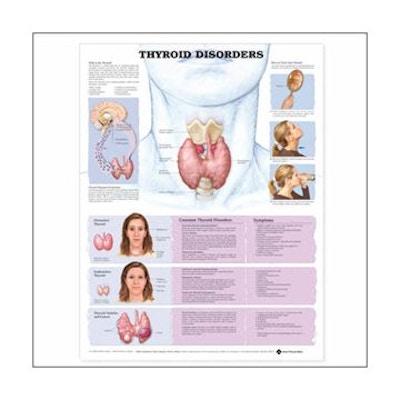 Lamineret plakat om sygdomme i skjoldbruskirtlen på engelsk (inkl. ringhuller)
