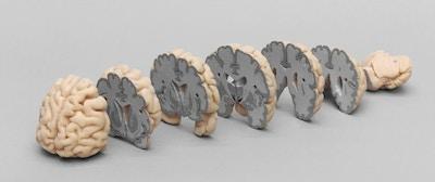 Model af hjerne delt i frontale sektioner