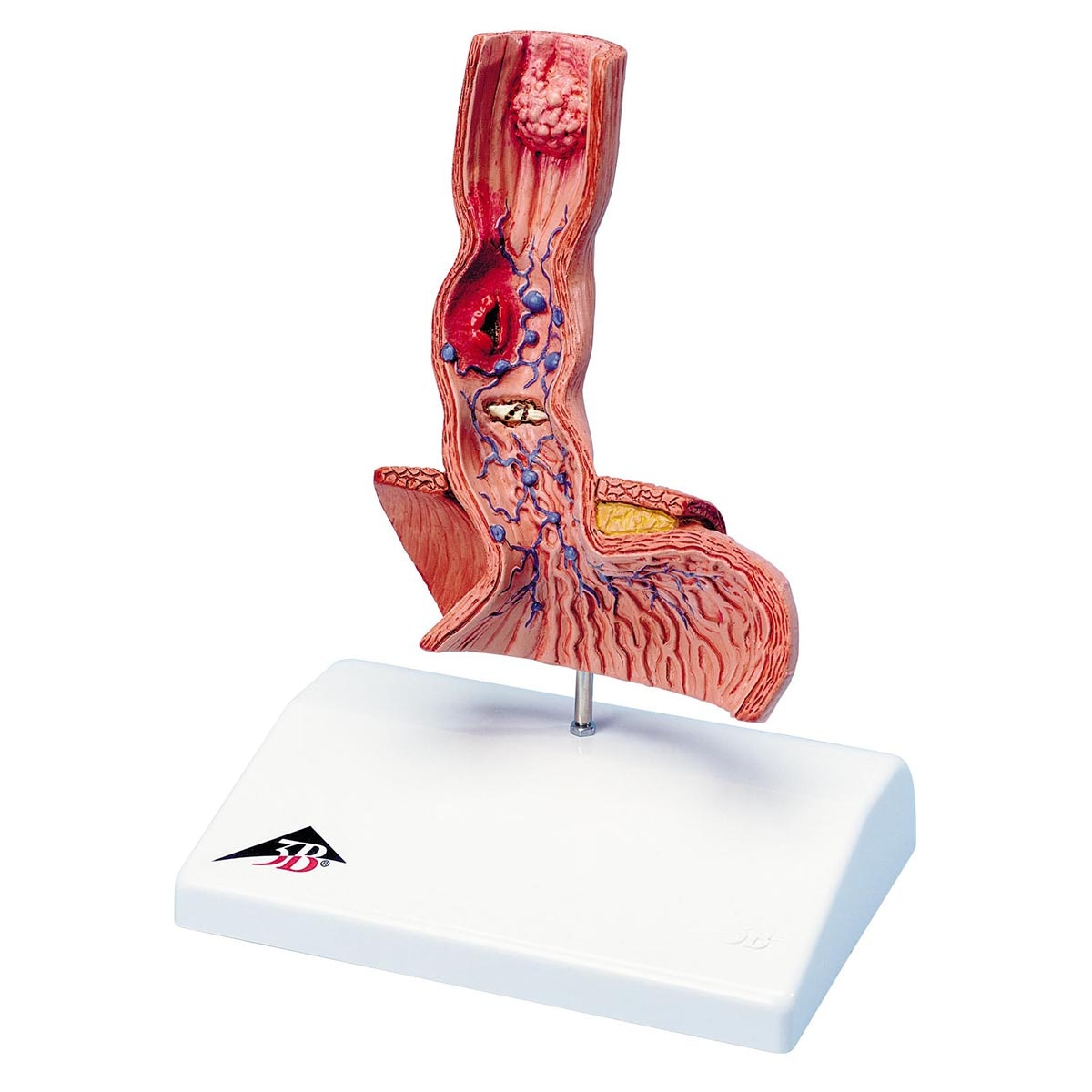 Modell som viser spiserøret og deler av magesekkens indre med forskjellige sykdommer