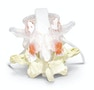 Dynamisk rygledsmodel af 2 lændehvirvler der viser en diskusprolaps. Ekstra læringsvenlig