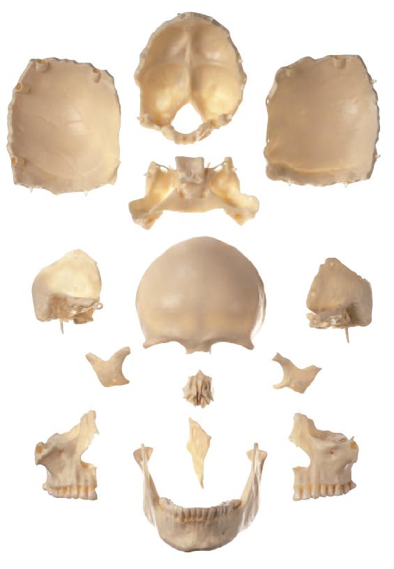 SOMSO 14-delt kraniemodel med farver