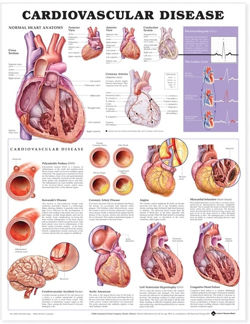 hjertekarsygdomme engelsk lamineret (Cardiovascular Disease)