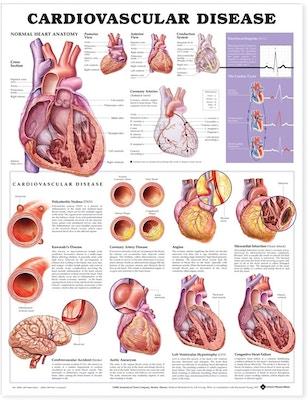 Lamineret plakat om hjertekarsygdomme på engelsk