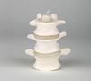 Særdeles fleksibel og simpel model af 3 lændehvirvler (L3-4-5)