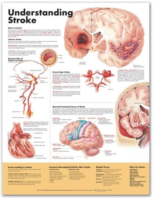Forstå hjerneblødning engelsk lamineret (Understanding Stroke)