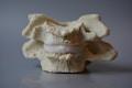 Dynamisk rygledsmodel af 2 halshvirvler der viser forskellige konsekvenser af degeneration
