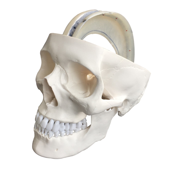 Kranie med dura mater, falx cerebri og tentorium