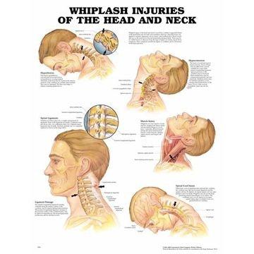 Piskesmældsskader lamineret plakat engelsk (Whiplash injuries)