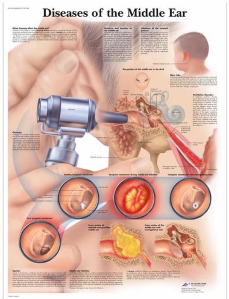 Sygdom i mellemøret lamineret med ringhuller