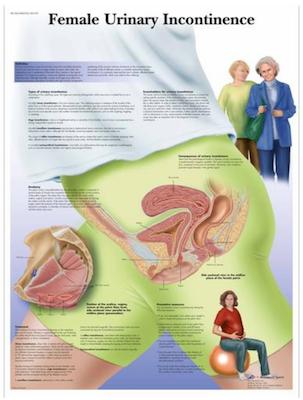 Kvinna inkontinens laminerad affisch