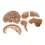SOMSO Hjernemodel - kan adskilles i 6 dele