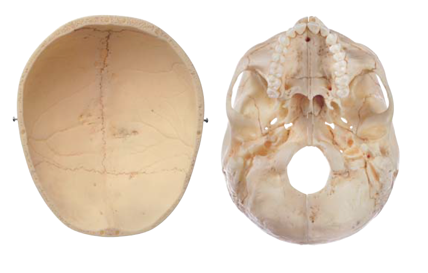 SOMSO Voksen-kranie i 9 dele
