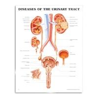 Urinveissykdommer, laminert plakat på engelsk