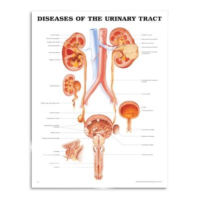 Lamineret plakat om de fleste sygdomme i nyren og urinvejene på engelsk