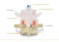 Dynamisk rygledsmodel af 2 lændehvirvler der viser en diskusprolaps. Mest læringsvenlig