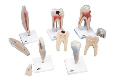 5 forstørrede og forskellige tænder (inkl. caries) præsenteret på hver sin stander
