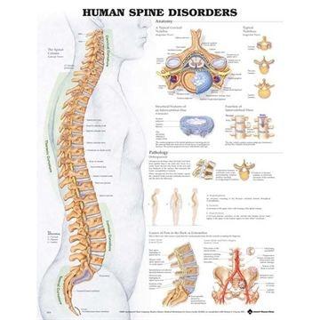 Sygdom i rygsøjlen lamineret plakat engelsk (Human spine disorders)