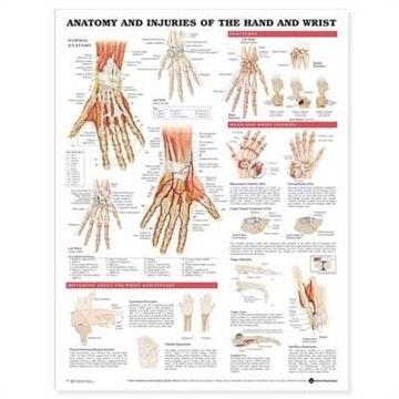 Lamineret plakat om hånden og håndleddets anatomi & lidelser på engelsk
