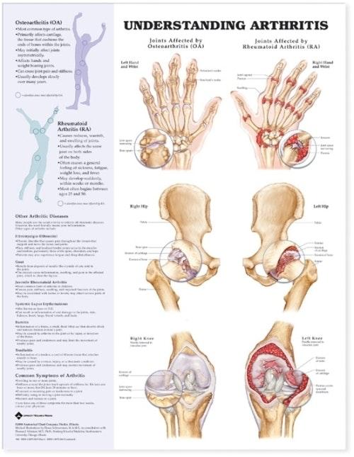 Forstå leddegigt engelsk lamineret (Understanding Arthritis)