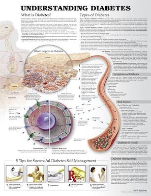 Forstå diabetes affisch engelska