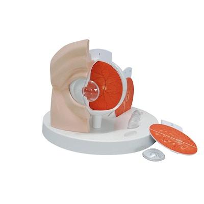 Praktisk øjemodel som er forstørret og viser 11 øjensygdomme/lidelser