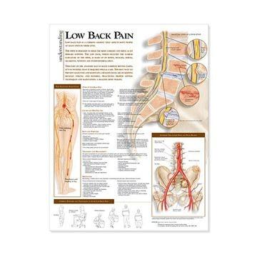 Lændesmerteplakat lamineret engelsk (Understand lower back pain)
