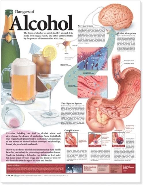 Plakat om alkohols skadevirkninger lamineret engelsk