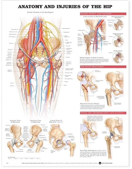 Plakat om hoftens anatomi & skader på engelsk