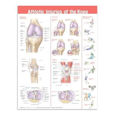 Kneskader etter sport (plakat på engelsk)