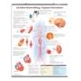 Lamineret plakat om FOR HØJT blodtryk på engelsk