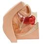 Gynækologisk træningsmodel til indsættelse af præventionsmidler