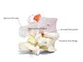 Dynamisk rygledsmodel af 2 lændehvirvler der viser spondylolyse og spondylolistese