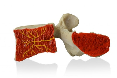 Basivertebral Nerve Lumbar Model