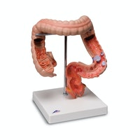 Detaljeret model af tyktarmen som viser adskillige sygdomme
