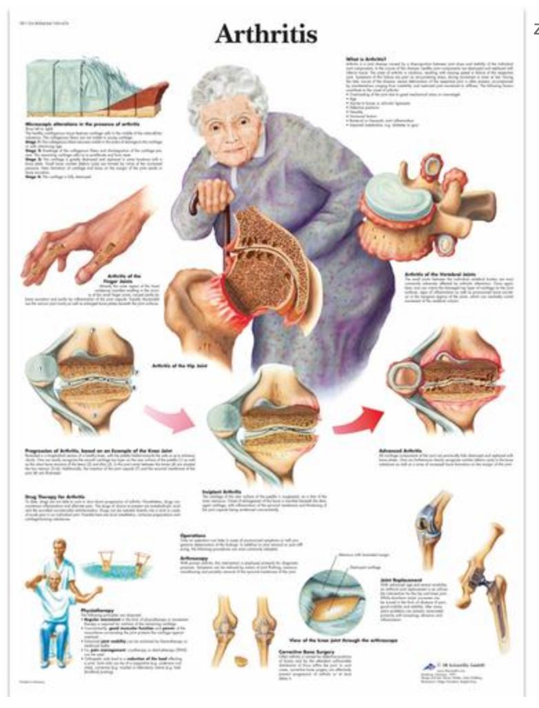 Lamineret plakat om artritis (inkl. ringhuller)