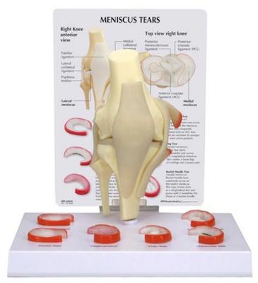 Knämodell med meniskrupturer och ledband