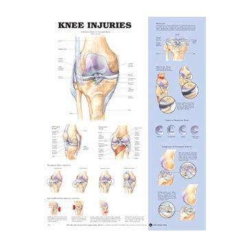 Lamineret plakat om knæskader på engelsk