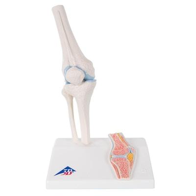Formindsket knæmodel med farvede ledflader plus et tværsnit af knæleddet