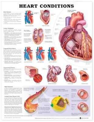 Hjärtsjukdom laminerat plansch