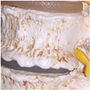 Letforståelig model af lændehvirvler med patologiske tilstande